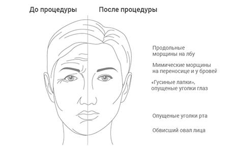 Почему косметологи со всего мира выбираю препарат Диспорт